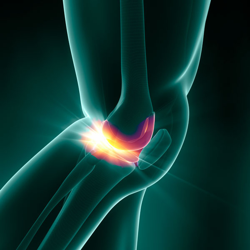 promotional tile for osteoarthritis clinical trial
